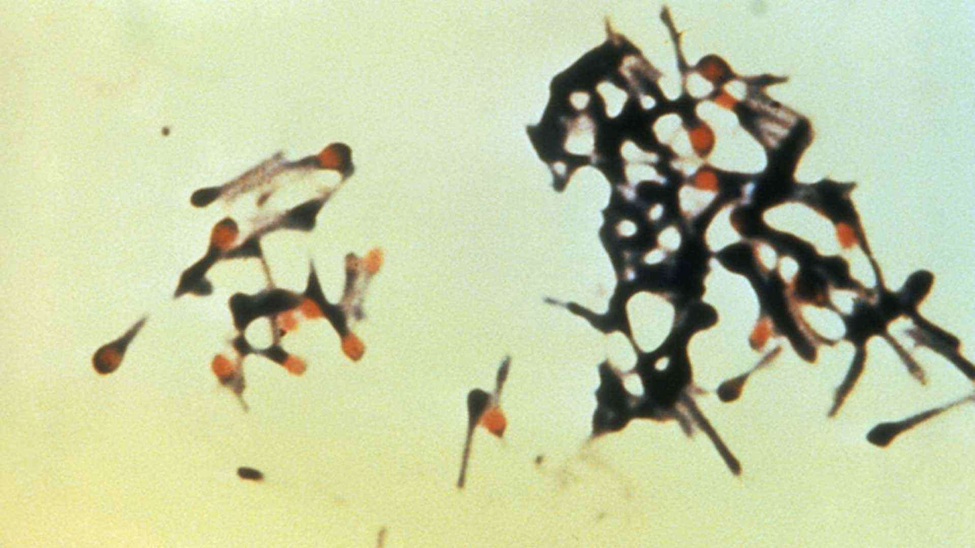 Micrograph depicting a group of fatal bacteria - they could be destroyed by wavelengths of blue light